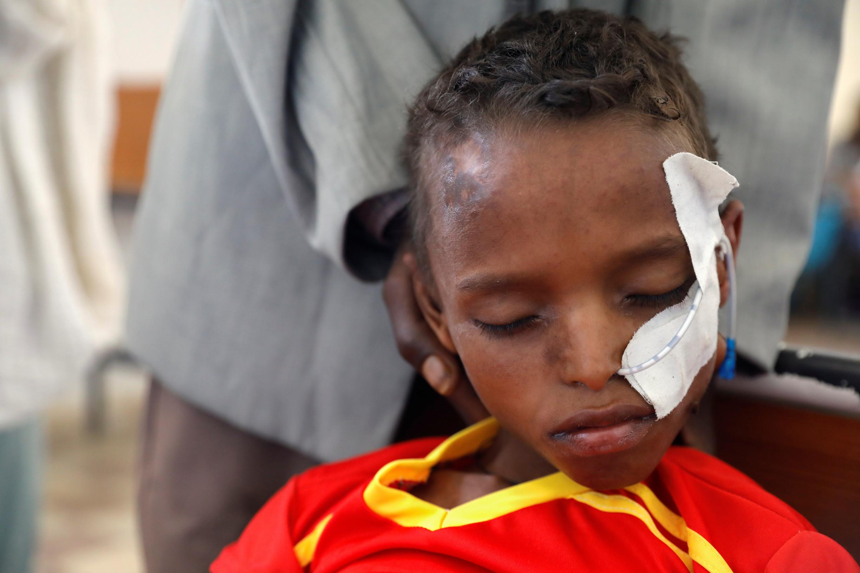 Jako první umírají malé děti. Etiopskou Tigraj sužuje nejhorší hladomor od katastrofy vSomálsku
