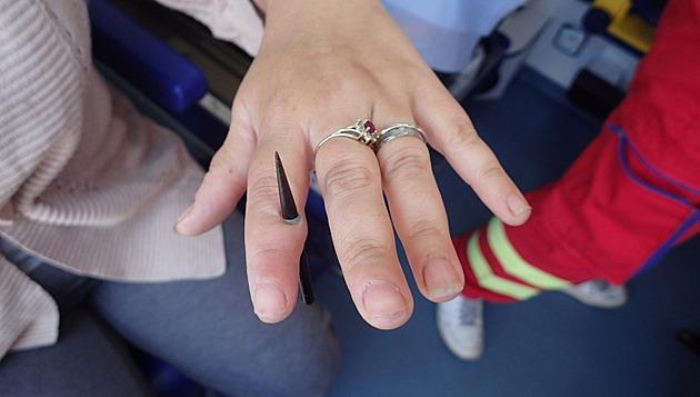 Vidlice na špekáčky projela ženě prstem, drát museli stříhat hasiči